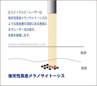 ADMレーザー芦屋柿本.jpg