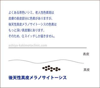 ADM芦屋柿本.jpg
