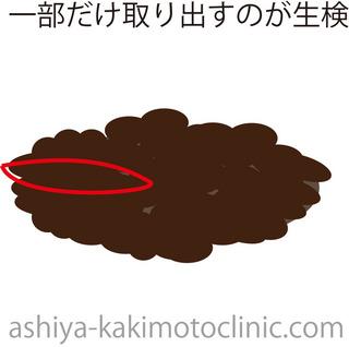 いぼ2.jpg