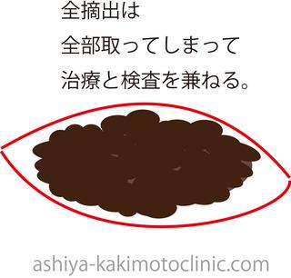 いぼ3.jpg