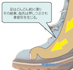 ひもぐつ8拡大.jpg
