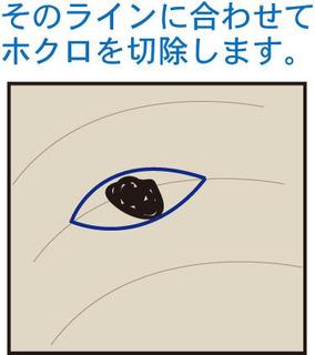 ほくろ4.jpg