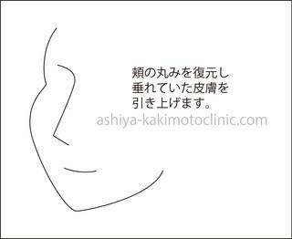 カニ3芦屋柿本.jpg