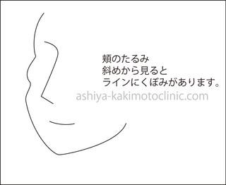 カニ1芦屋柿本.jpg