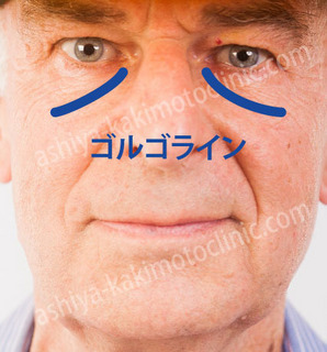 ゴルゴライン芦屋柿本加工.jpg