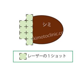 シミ模式芦屋柿本.jpg