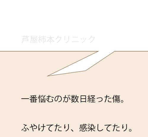 スクリーンショット 2021-03-08 17.32.00.png