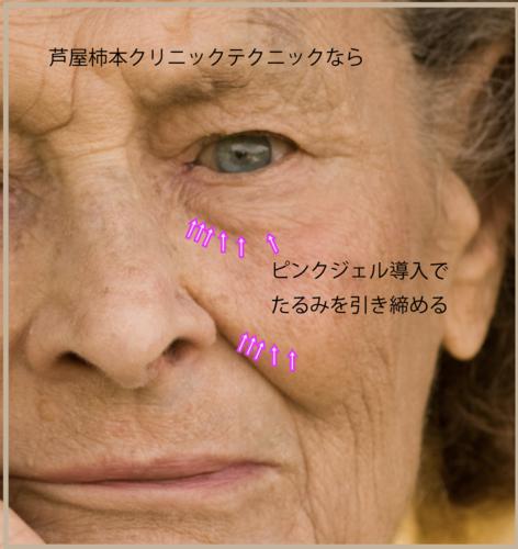ピンクジェル引き締め.png