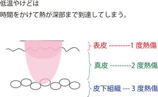 低温熱傷柿本クリニック.jpg