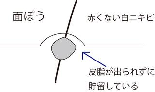 圧出1.jpg