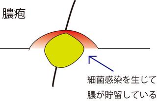 圧出2.jpg