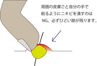 圧出4.jpg