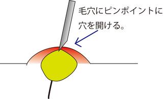 圧出5.jpg