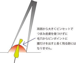 圧出6.jpg