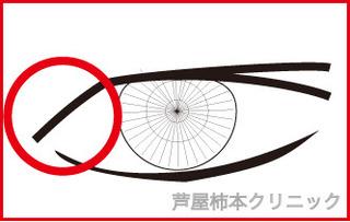 奥二重1−5.jpg