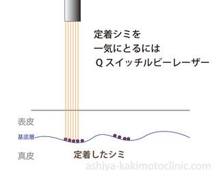 定着シミレーザー.jpg