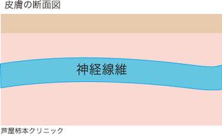 帯状疱疹1.jpg