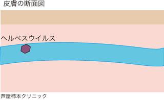 帯状疱疹2.jpg