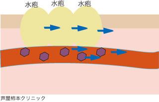 帯状疱疹5.jpg