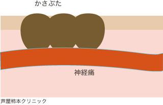 帯状疱疹6.jpg