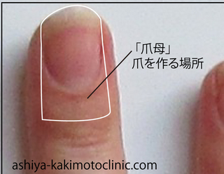 手足口病の爪3.jpg