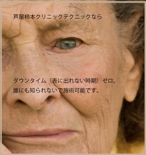 柿本クリニックテクニック.png