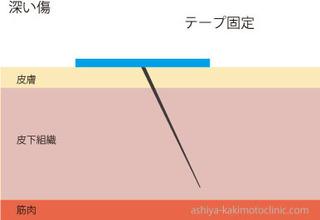 深い傷3.jpg