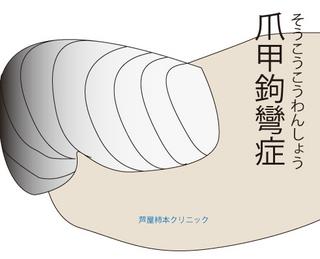 爪甲鉤彎症1.jpg