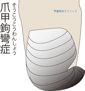 爪甲鉤彎症2.jpg