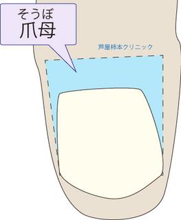 爪甲鉤彎症3.jpg