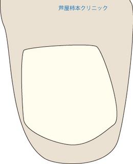 爪甲鉤彎症4.jpg