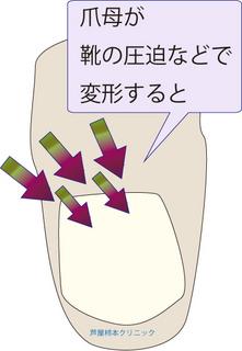爪甲鉤彎症5.jpg