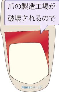 爪甲鉤彎症6.jpg
