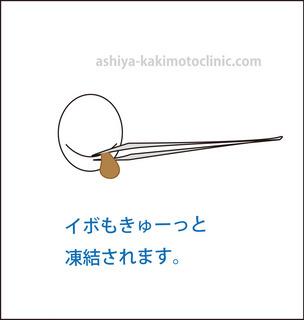 目のイボ5芦屋柿本.jpg