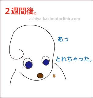 目のイボ7芦屋柿本.jpg