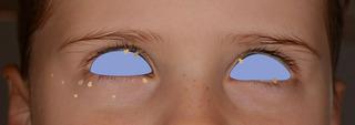 目の周りイボ.jpg