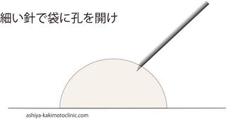 稗粒腫2.jpg