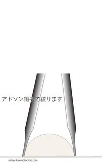 稗粒腫3.jpg