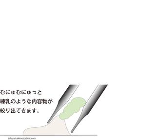 稗粒腫4.jpg