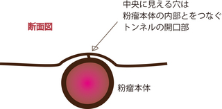 粉瘤2.jpg