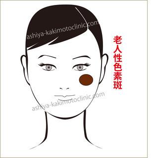 老人性色素斑1.jpg