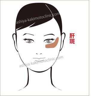 肝斑芦屋柿本.jpg