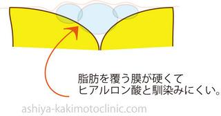脂肪膜が硬い.jpg