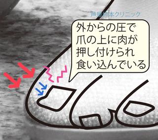 陥入爪柿本クリニック.jpg
