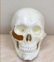 頬骨と肝斑スカルの肝斑.jpg