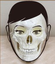 頬骨と肝斑スカル付き.jpg