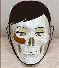 頬骨と肝斑フル画像.jpg