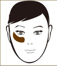 頬骨と肝斑肝斑付き.jpg