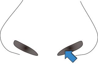 鼻のイボ2.jpg
