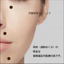 Skin-tumor-removal9347.jpg